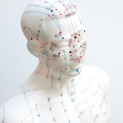 acupuncture-tete